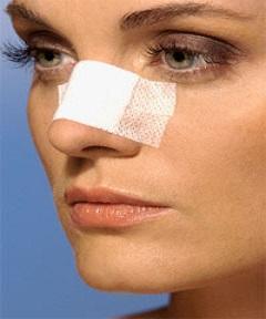 cirugia-de-nariz-medellin